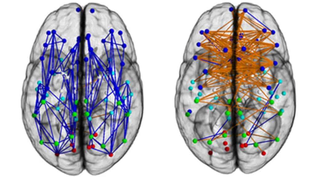 Afbeeldingsresultaat voor picture brains